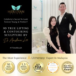 lifting treatment with ulthera joanne yew