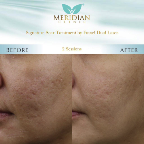Scar Treatment Fraxel Dual Laser Before After