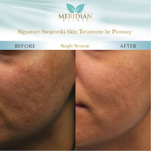 PicoWay Laser Treatment Skin Before After