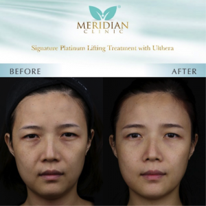 Signature Platinum Lifting Treatment with Ulthera Before & After